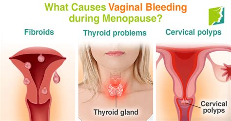 causes bleeding during sex png 578x303