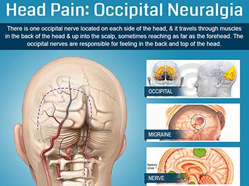 persistant head and facial pain jpg 360x270