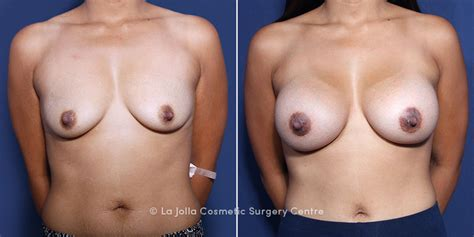 Breast reconstruction before after dr prichard jpg 800x400